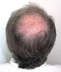Мужчины лысеют…благодаря матери - 20061104101454911_1