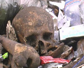 Страшная находка в одном из киевских дворов - 2007041711521297_3