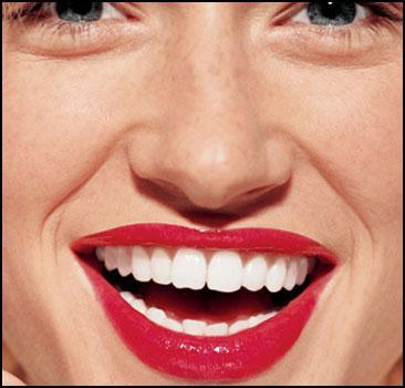 Способы отбеливания зубов - 20070528113354985_1