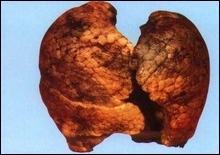 Сегодня отмечается Всемирный день без табака - 20070531182055688_1