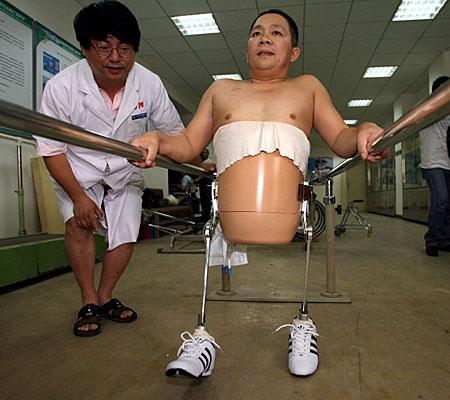 Miracle man walks again - 20070711185209648_1