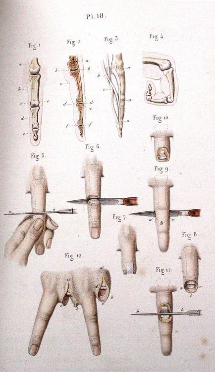 Пособие начинающего хирурга - 20071127190802975_2