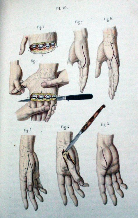 Пособие начинающего хирурга - 20071127190802975_4