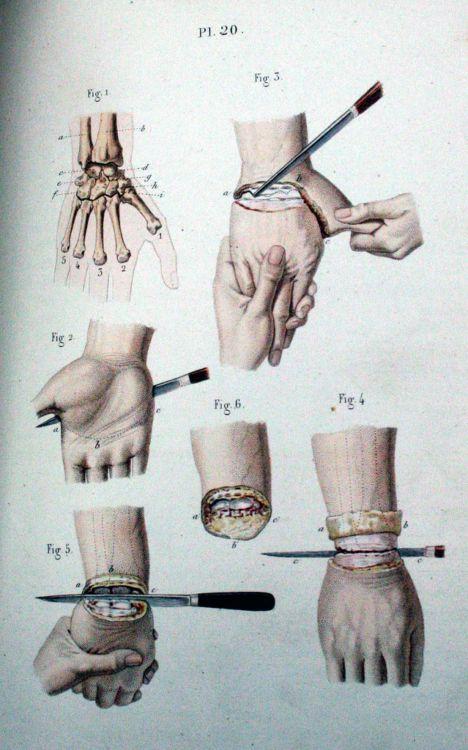 Пособие начинающего хирурга - 20071127190802975_5