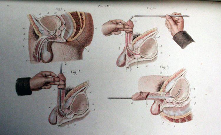 Пособие начинающего хирурга - 20071127190802975_7