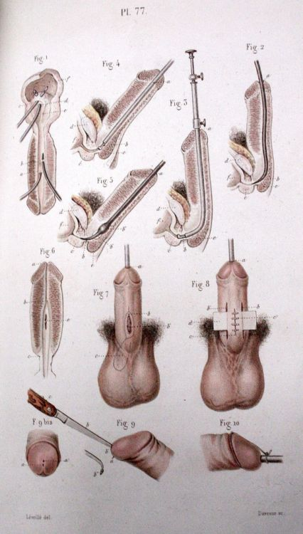 Пособие начинающего хирурга - 20071127190802975_8