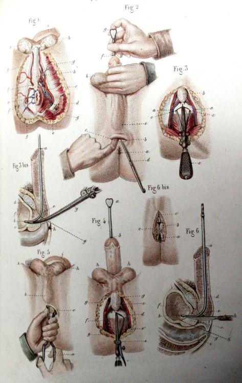 Пособие начинающего хирурга - 20071127190802975_9
