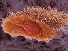 Создан искусственный вирус, убивающий раковые клетки - 20080603095304347_1