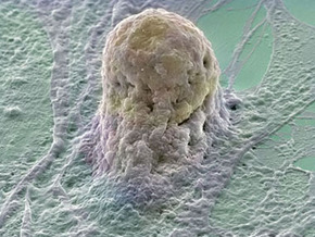 Лечение стволовыми клетками привело к появлению опухолей у подростка - 20090219232330869_1