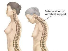 Чем опасен остеопороз и как с ним бороться - советы врача - 4em-opasen-osteoporoz-i-kak-s-nim-borots_1