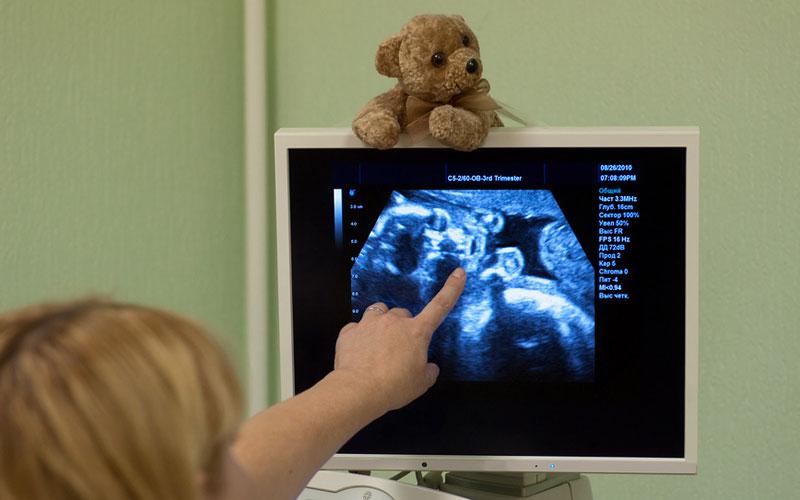 Дородовая диагностика в киевской клинике лечения бесплодия IGR - dorodovaja-diagnostika-v-kievskoj-klinike-lechenija-besplodija-igr_1