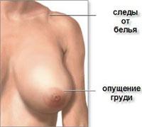 В каких случаях можно сделать уменьшение груди - v-kakih-sluchajah-mozhno-sdelat-umenshenie-grudi_1