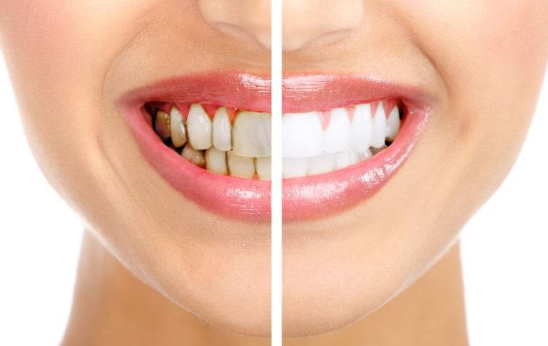 Профессиональные стоматологические клиники в Оболонском районе - 10483423_m-768x486